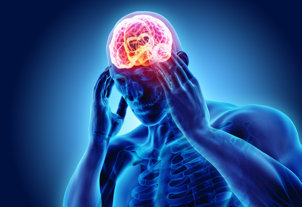 chứng đau nửa đầu